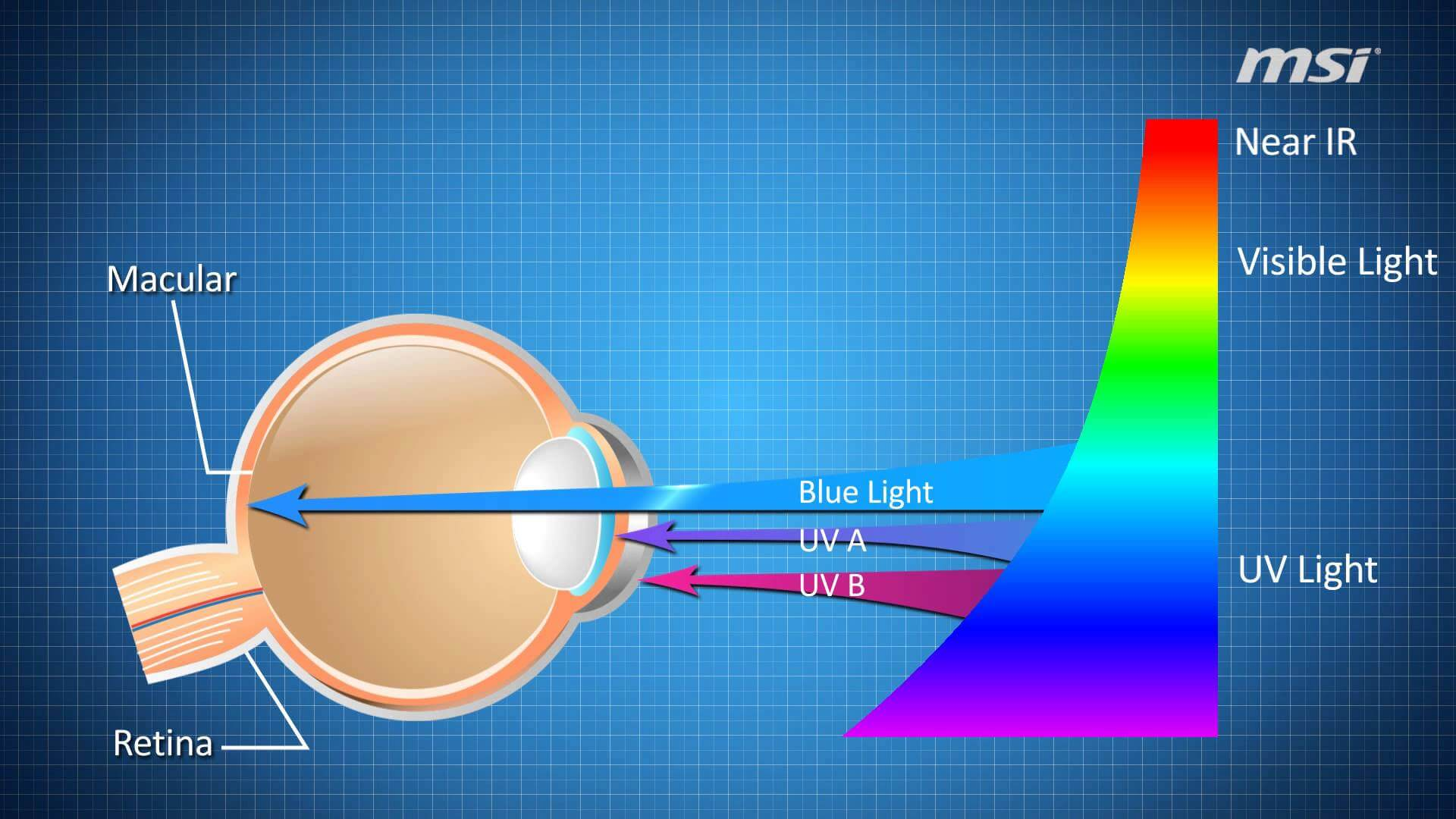 The effect of LED Pixels in Eyes